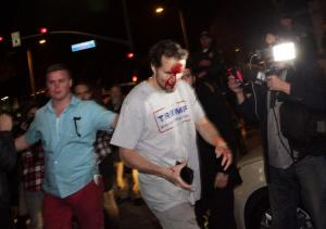 bloodied-trump-supporter